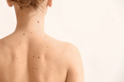 Young woman with moles on white background