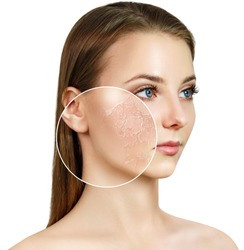 Young woman with zoom circle shows dry facial skin before moistening. Skincare concept.