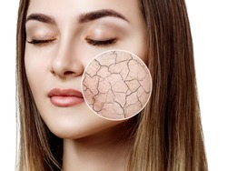 Zoom circle shows dry facial skin before moistening. Skin care concept.