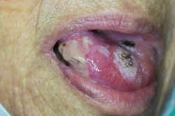 Zooming closeup view of painful ulcerative lesion at tongue of an old Asian female patient and the diagnosis is cancer of lateral side of tongue