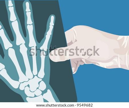 Xray Hand Holding a Hand Holding a x Ray FilmXray Hand Holding