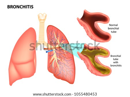 BRONCHITIS. Normal bronchial tube and Bronchial tube with bronchitis. Vector illustration of lungs affected by bronchitis