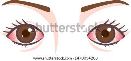 Disorder of eyes, inflamed eyes