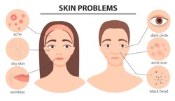 Infographics of problem skin. Illustration of guy and girl with skin defects
