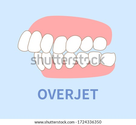 orthodontics  illustrations ; crowding, opposite occlusion, open bite, maxillary anterior protrusion, cavities, dentition, overjet Photo stock ©
