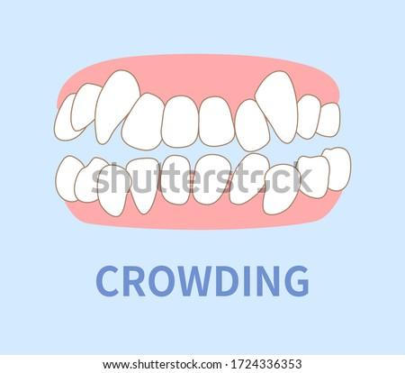orthodontics  illustrations ; crowding, opposite occlusion, open bite, maxillary anterior protrusion, cavities, dentition Photo stock ©
