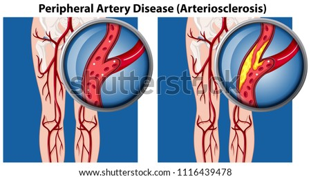 A Comparison of Peripheral Artery Disease illustration