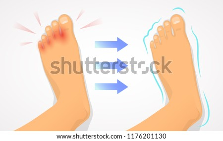 A foot affected by a fungus and a healthy foot. Result of treatment of fungus, healthсare