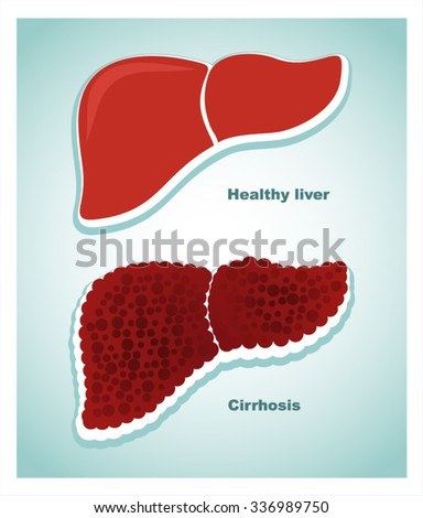 a healthy liver and a liver