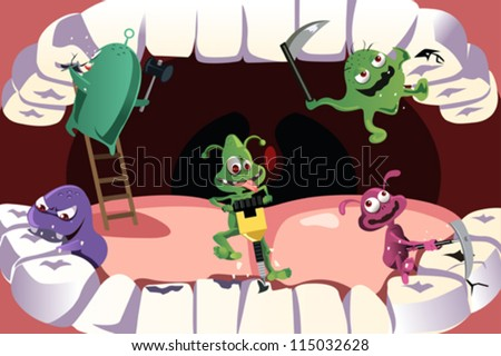 A vector illustration of germs attacking teeth causing cavity