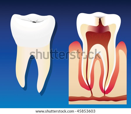 stock-vector-a-vector-illustration-showing-an-unhealthy-tooth-with-a-cross-section-45853603.jpg