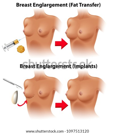 A Vector of Breast Surgery illustration