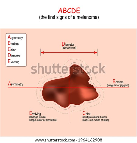 ABCDE Rule for the early detection of Melanoma. signs and Symptoms of Skin Cancer. malignant tumor and moles. Vector illustration Stock photo ©