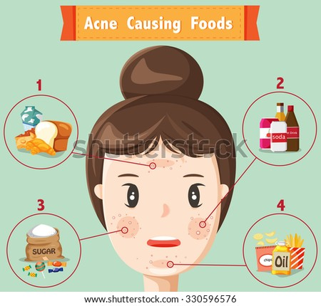 acne casing foods with woman