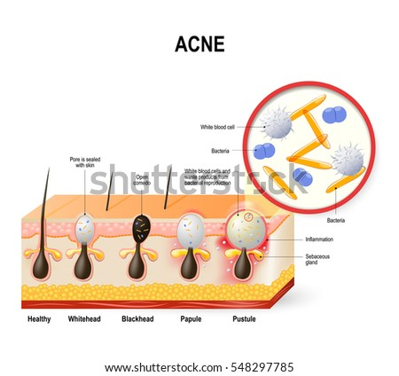 acne vulgaris or pimple the