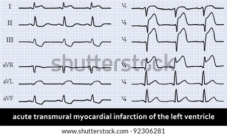 Acute myocardial infarction with Q-wave on ECG. Detailed vector. Professional  information.