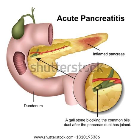 Acute pancreatitis 3d medical vector illustration on white background Foto stock ©