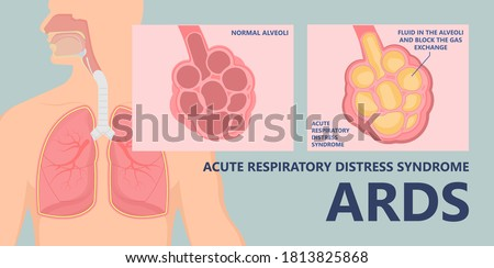 Acute respiratory distress syndrome (ARDS) a respiratory failure and inflammation in the lungs equipment hospital Emphysema fibrosis idiopathic Cystic Collapsed pneumothorax embolism Photo stock ©