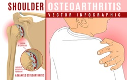 Advanced shoulder osteoarthritis infographic. Realistic bones scheme. Joint pain. Editable vector illustration with a man figure. Medical, healthcare, common diseases concept. Horizontal poster