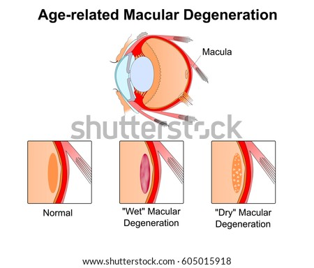 Tunnel vision download free vector art stock graphics images age related macular degenerationeye vision disorderdiagram of the eye ccuart Choice Image