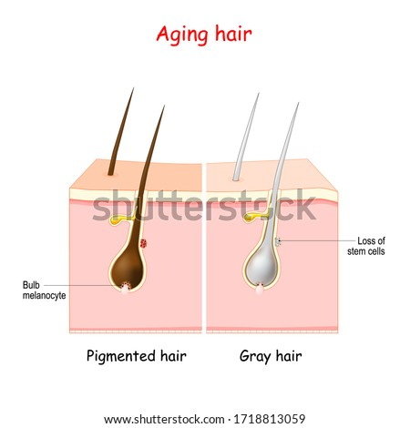 aging process through gray hair. Pigmanted and gray hair. The stem cells produce melanocytes, that produce and store pigment. The death of the melanocyte stem cells causes the onset of graying.