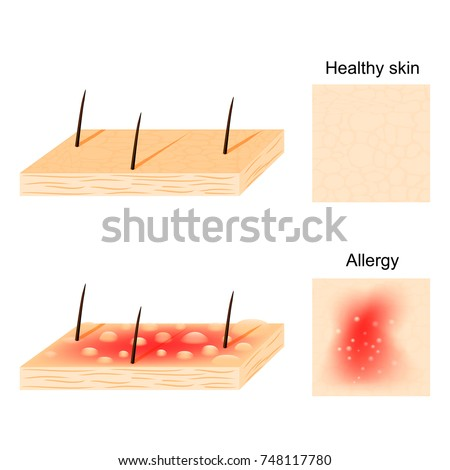 allergy hives  urticaria  are
