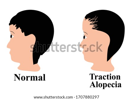 Alopecia hair. Baldness of hair on the head. Traction alopecia. Infographics. Vector illustration on isolated background. Stockfoto ©
