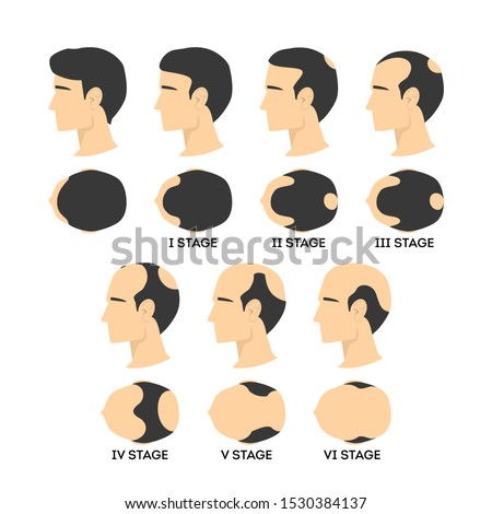Alopecia stages set. Hair loss, balding process. Male alopecia. Isolated vector illustration in cartoon style