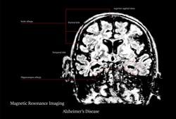alzheimer's disease MRI picture version