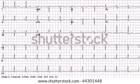 An example of a normal 12-lead sinus rhythm electrocardiogram,