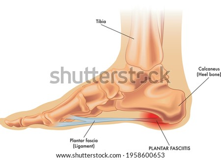 An illustration of the anatomy of a foot with the symptoms of plantar fasciitis.