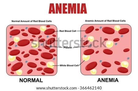 anemia diagram  vector