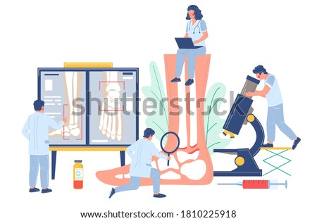 Ankle and foot arthritis. Tiny doctor characters examining human foot joints using microscope, magnifier, xray pictures, flat vector illustration. Osteoarthritis, rheumatoid arthritis, joint disease.