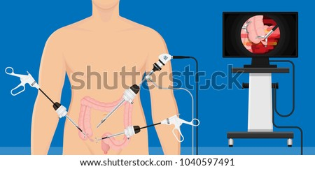 appendectomy medical surgery organ colon tool heal room body doctor pain scars liver cancer tummy tumor mass trocars nurse pelvic video health system display urology monitor endoscopic cholecystitis