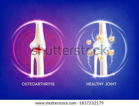 Arthritis knee joint. Pain in leg. Human bone anatomy. Skeleton x ray scan concept and Vitamin therapy. Vector EPS10 illustration