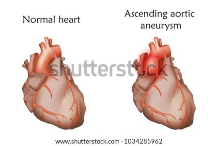 ascending aortic aneurysm....