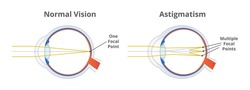 Astigmatism, refractive or refraction error. Eye disorder, eye does not focus light evenly on the retina. Blurry, blurred, or distorted vision. The illustration is isolated on a white background.