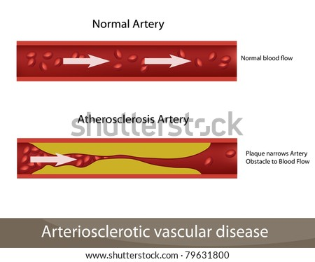 Atherosclerosis illustration. High cholesterol. Normal artery and atherosclerosis artery.