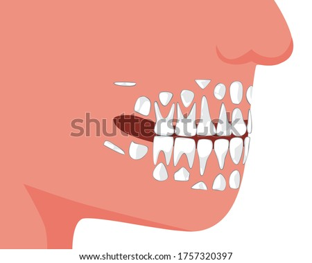 Baby teeth or milk tooth. Growth of permanent teeth, flat anatomical vector stock illustration with molars and incisors. Child teeth during growth. Milk tooth, child or baby isolated