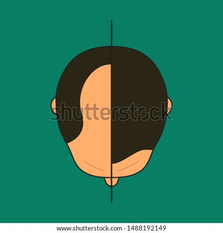 Baldness in man, male with bald head, before and after hair transplantation, male alopecia, plastic surgery, treatment top view. Vector illustration