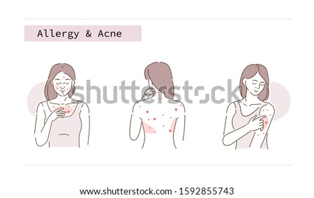 Beauty Girl Have Allergy and Acne Skin Problems. Woman Scratching her Body and Face with Hand. Allergic Dermatitis, Eczema or Nettle Rash with Itch Symptoms.  Flat Line Cartoon Vector Illustration.