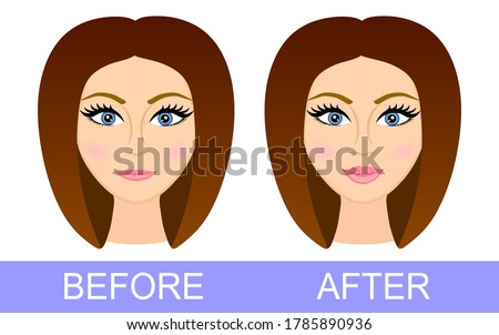 Before after lip correction. Woman after using lip filler. Lip Augmentation. Before and after lip filler injections. Hyaluronic Acid injections. Vector illustration. Poster. Banner. Plastic surgery