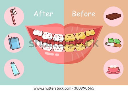 before and after teeth  great