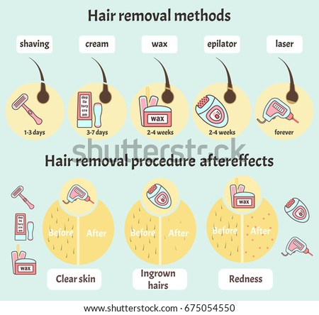 Big flat colorful vector hair removal infographic with epilation and depilation equipment, methods and aftereffects. Beauty salon delicate skin and hair care infographics in blue and pink colors