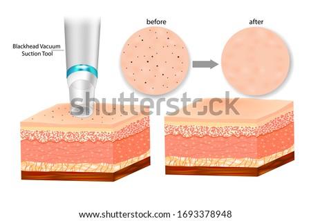 Blackhead Remover Deep Pore Vacuum Suction Facial. Blackhead Vacuum Suction Tool Foto stock ©