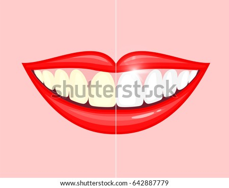 bleaching teeth treatment