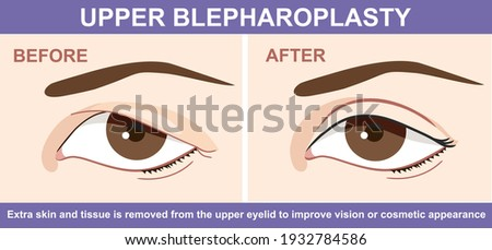 Blepharoplasty of eyelid , before and after. Vector illustration with double eyelid surgery. Infographics with icons of plastic surgery procedures.  ストックフォト ©