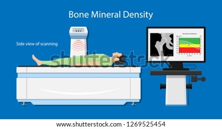 Bone mineral density (BMD) osteoporosis dual energy X-ray absorptionmetry adult disease equipment medical clinic central DXA pain radiography hospital fragility risk examine