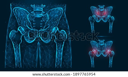 Bones of the pelvis and hip, human anatomy. Pelvic and hip joint pain. X ray of the hip joint made of lines and dots isolated on blue background. Stock fotó ©