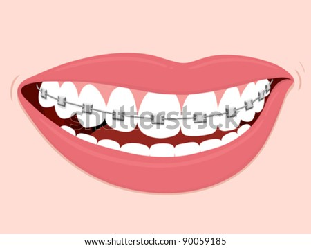 Brace Teeth Clipart Healthy Teeth And Braces
